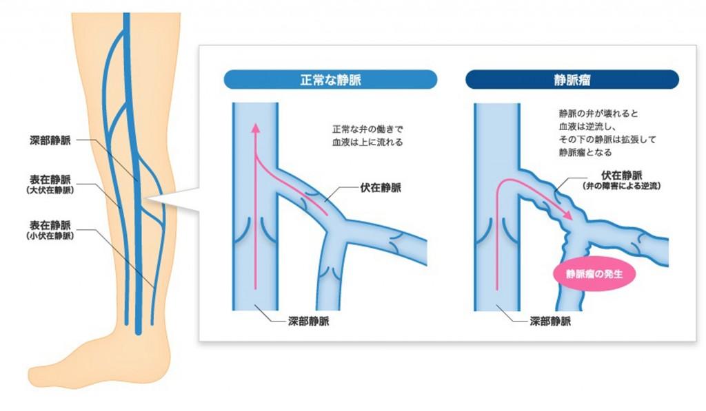 下肢静脈瘤発症の仕組み