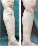 手術前の下肢静脈瘤と手術後