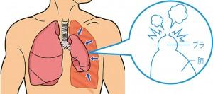 自然気胸は肺のパンクです