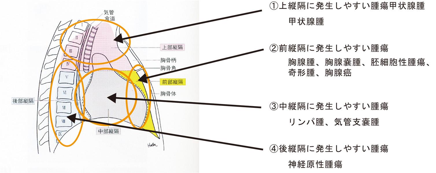 縦隔の区分(側面像)