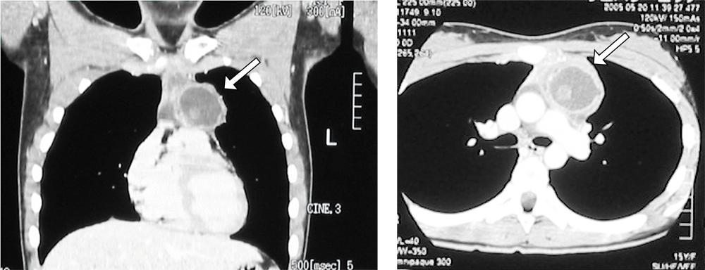 胸部CT(冠状断・水平断)