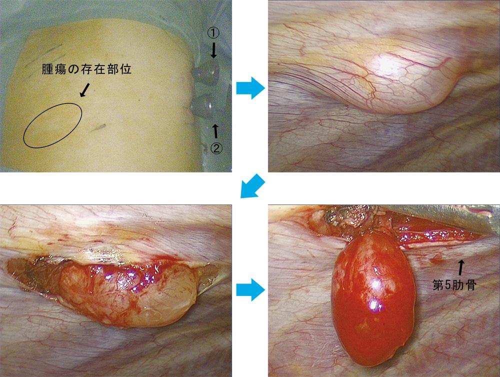 左上:2port methood ①②で手術を開始、右上:第5肋間に楕円形の腫瘍を認める、左下:腫瘍を壁側胸膜から剥離・露出、右下:腫瘍の全貌