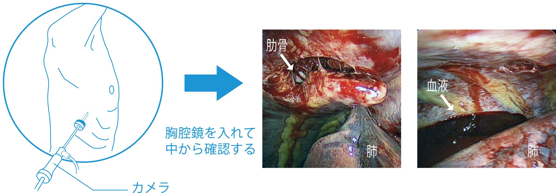交通外傷により肋骨が肺に刺さり血気胸となっている