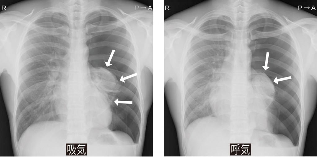シリーズ呼吸器外科1_気胸06.jpg