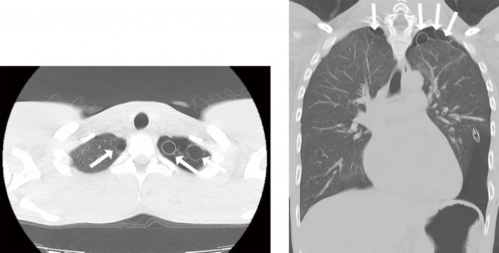 胸部CT(左:水平断 右:冠状断)