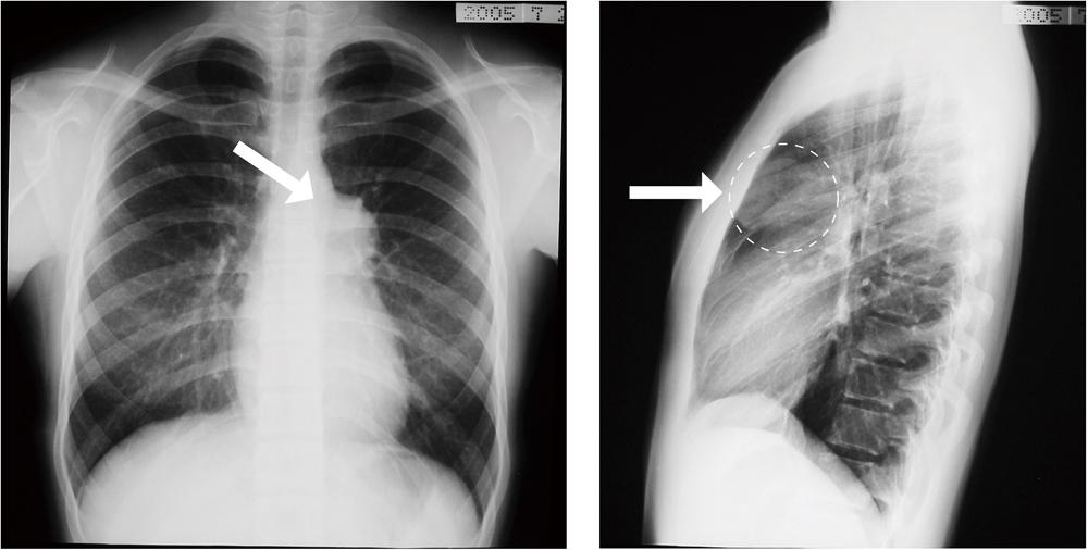 胸部X線写真(正面・側面)