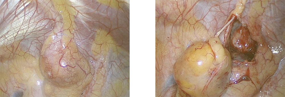 左:胸腔内所見(後縦隔腫瘍)、右:胸壁から剥離した腫瘍