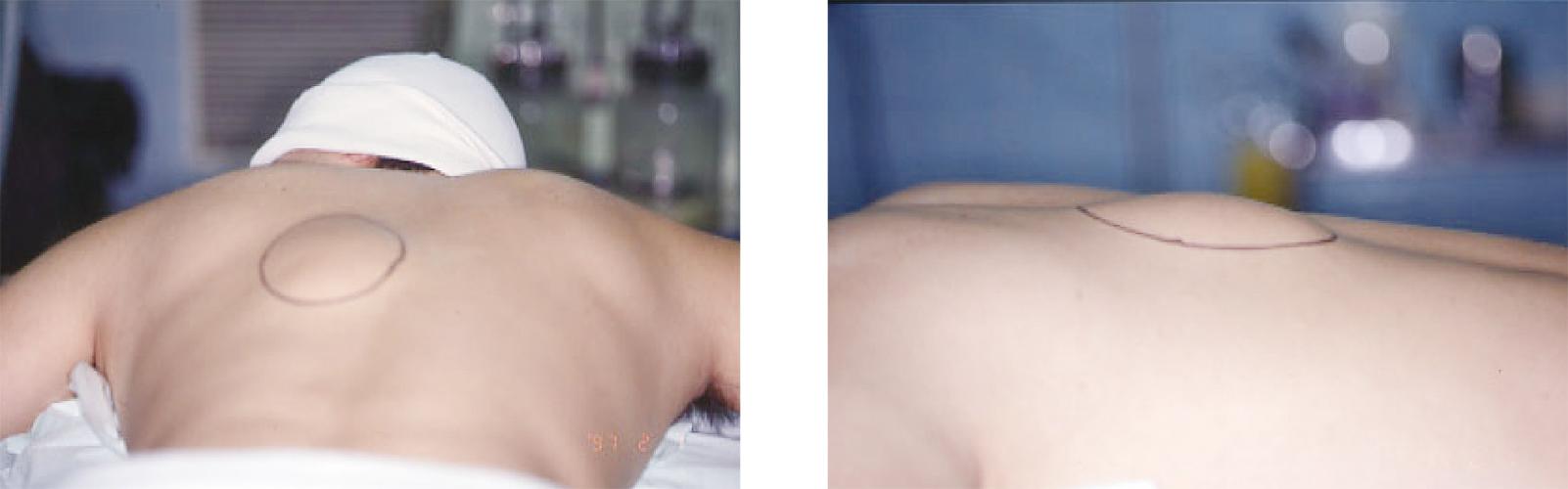 シリーズ呼吸器外科2.1_縦隔腫瘍12