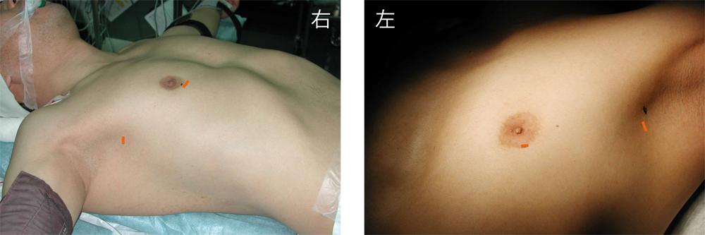 男性は乳輪下から胸腔鏡を挿入