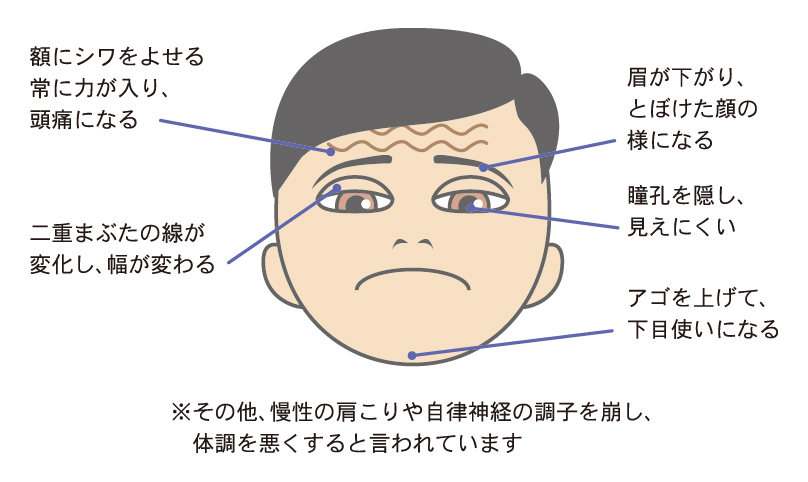 眼瞼下垂の状況イラスト