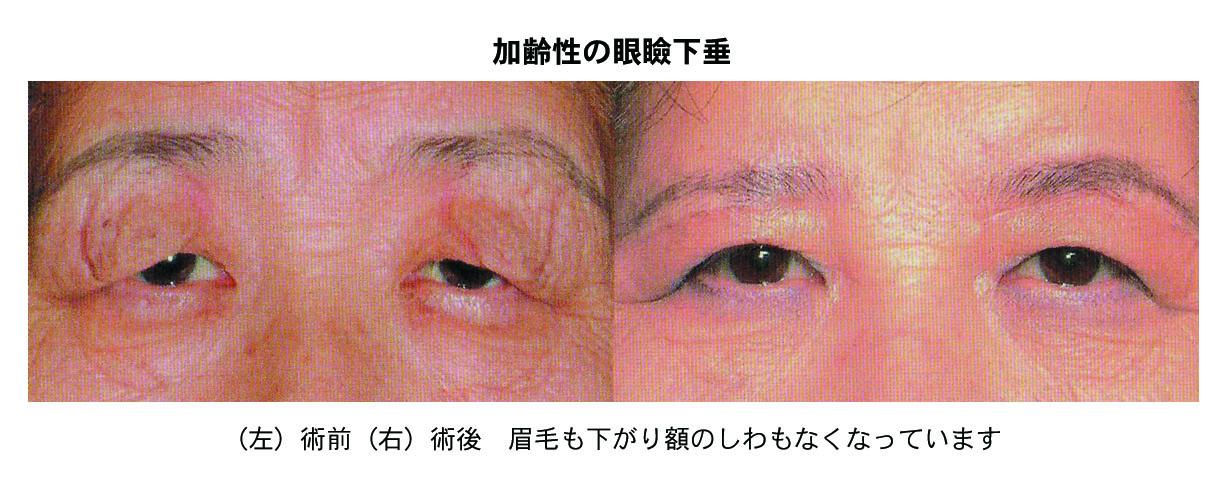 加齢性の眼瞼下垂